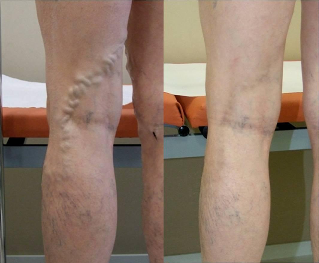 Венозная сетка на ногах у беременных 93